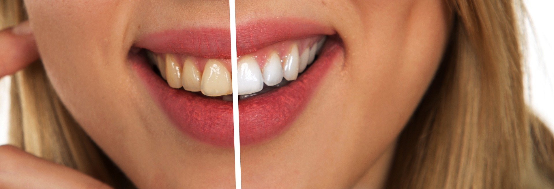 How to keep your teeth staying white…